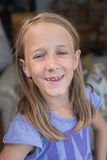 Goofy girl smiling to camera. Goofy girl with missing teeth,  looking at camera Stock Image