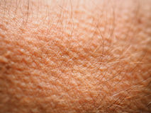 Goose bumps. On adult skin stock image