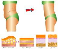 Gordura na barriga. Ilustração Royalty Free