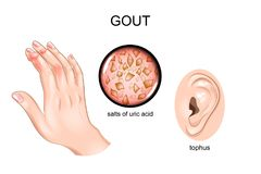 Gout, αρθρίτιδα, tofus απεικόνιση αποθεμάτων