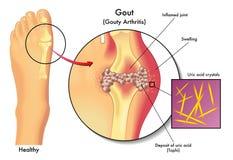 gout διανυσματική απεικόνιση