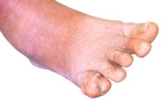 Gout foot little finger in aged people Close up On white background.  royalty free stock image