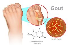 Gout is a form of inflammatory arthritis. Illustration of foot with gout. Gout is a form of inflammatory arthritis is due to persistently elevated levels of uric vector illustration