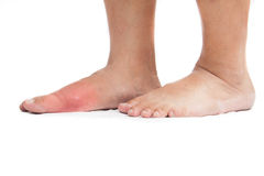Gout inflammation on the right foot Stock Photos