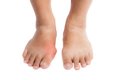 Gout inflammation on the right foot stock photography