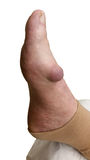 Gout MTP-joint Royalty Free Stock Photo
