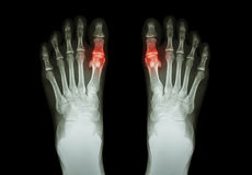 Gout , Rheumatoid arthritis ( Film x-ray both foot and arthritis at first metatarsophalangeal joint ) ( Medicine and Science backg Stock Photos