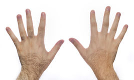 Governare del laser dei capelli della mano Fotografie Stock