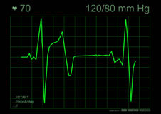 Gráfico de ECG Fotos de Stock Royalty Free