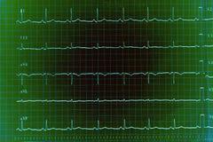 Gráfico de ECG imagem de stock