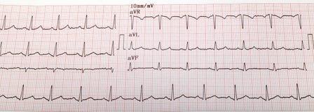 Gráfico de Ecg, ekg del electrocardiograma fotografía de archivo libre de regalías
