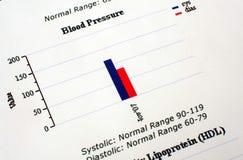 Gráfico de Presure do sangue Fotografia de Stock Royalty Free