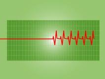 Gráfico del corazón anormal Fotografía de archivo libre de regalías