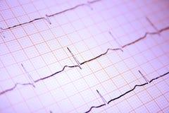 Gráfico del corazón ECG en el papel Foto de archivo libre de regalías