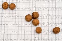 Gráfico del electrocardiograma, análisis del corazón Nueces fotos de archivo