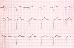 Gráfico del electrocardiograma en el papel Imágenes de archivo libres de regalías