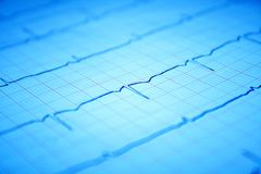 Gráfico do coração ECG no papel Imagens de Stock Royalty Free
