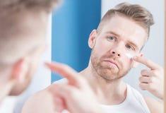 Grabb som applicerar ansiktsbehandlingkräm arkivbild