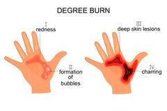 Gradbrännskada vektor illustrationer