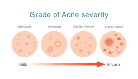 Grade of acne severity. Medical diagram about skin problems from acne. royalty free stock photos