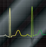 Gradient ecg. A ecg that show heart beat with a black and silver background Royalty Free Stock Image