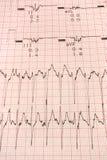 Graf för EKG Electrocardiology Arkivbilder