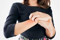 Graffio della ragazza il prurito con la mano itching, concetto con Healthcar Fotografia Stock Libera da Diritti