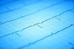 Grafico del cuore ECG su documento Immagini Stock Libere da Diritti