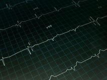 Grafico dell'elettrocardiogramma Immagine Stock