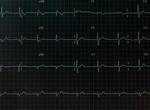 Grafico dell'elettrocardiogramma fotografia stock