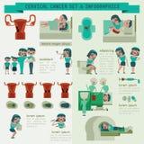 Grafico dell'insieme e di informazioni del cancro cervicale Fotografia Stock