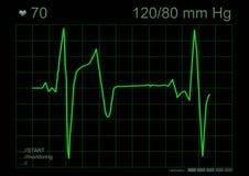 Grafico di ECG Fotografie Stock Libere da Diritti