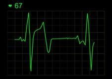 Grafico di ECG Fotografia Stock
