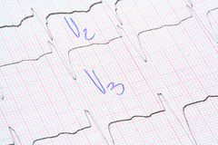 Grafico di ECG con le note del medico Immagini Stock