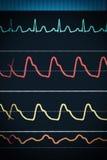 Grafico di ECG sulla sorveglianza del monitor ventiquattr'ore su ventiquattro Fotografie Stock Libere da Diritti