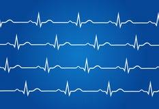 Grafico normale dell'elettrocardiogramma Immagine Stock Libera da Diritti