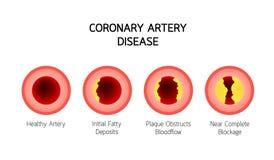 Grafische de informatie van de Kransslagaderziekte Het concept van de hartvoorlichting royalty-vrije illustratie