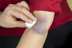 Grande contusione sul braccio umano Fotografia Stock
