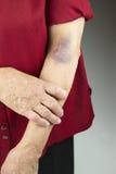 Grande contusione sul braccio umano Fotografie Stock Libere da Diritti
