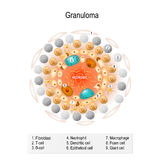 Granuloma Royalty Free Stock Image