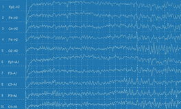 graph brain wave EEG isolated Stock Images