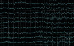 Graph brain wave EEG isolated Royalty Free Stock Photography