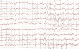 Graph brain wave EEG isolated Royalty Free Stock Photo