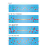 Graph of breathing, the pathological types of breathing Stock Photos