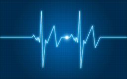 Graph ECG. This cardiograph is made with the help of  software Stock Image
