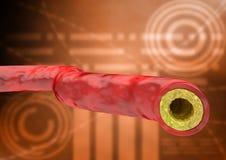 Graphique avec l'hospitalisé d'essai de cholestérol, résultat avec la veine et artère avec l'accumulation des graisses illustration libre de droits