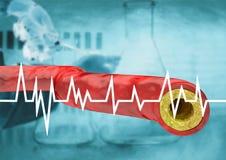 Graphique avec l'hospitalisé d'essai de cholestérol, résultat avec la veine et artère avec l'accumulation des graisses illustration de vecteur
