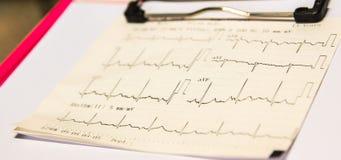 Graphique d'électrocardiogramme sur le diagramme patient et le docteur de attente pour vérifier les symptômes du patient encore P Photos stock