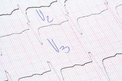 Graphique d'ECG avec des notes de docteur Images stock