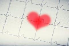 Graphique d'Ekg Ecg d'ekg d'électrocardiogramme avec le coeur brouillé par rouge Photos libres de droits